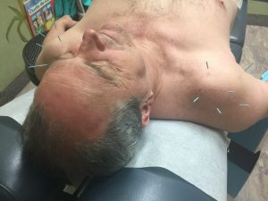 Acupuncture is used to stimulate healing, used with chiropractic