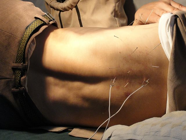 dry needling in ottawa, acupuncture, dry needling, dry needling physiotherapy, physiotherapy